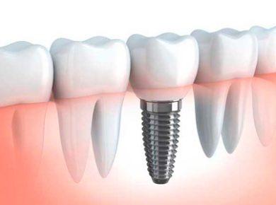 implante.jpg